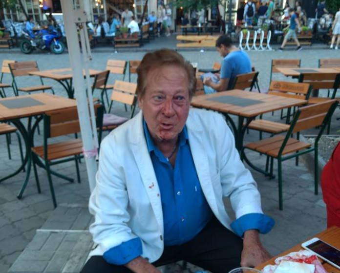 Відомого американського співака Білла Уоррена побили вОдесі